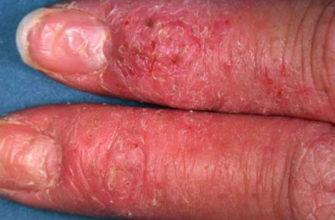Дерматит ногтей